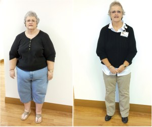 Gail Burkett underwent a significant transformation after getting a sleeve gastrectomy, losing 179 pounds since January 2015. (Courtesy of Bayfront Health Dade City)