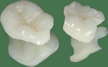 Valplast Partials  Lakeview Dental