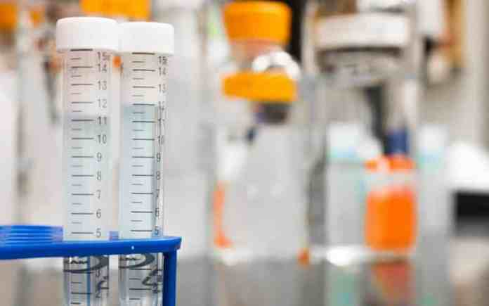 hepatitis c can be diagnosed with blood test