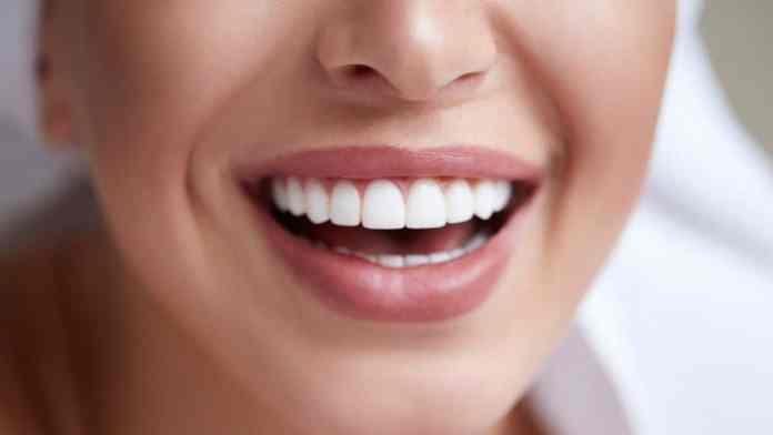 white teeth