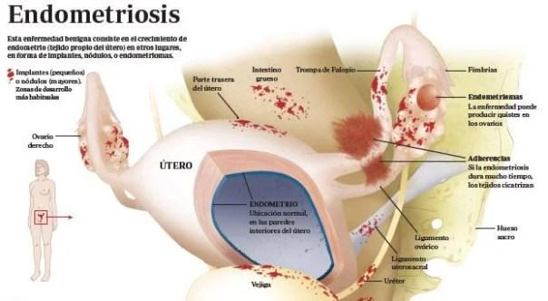 Anatomía de la endometriosis