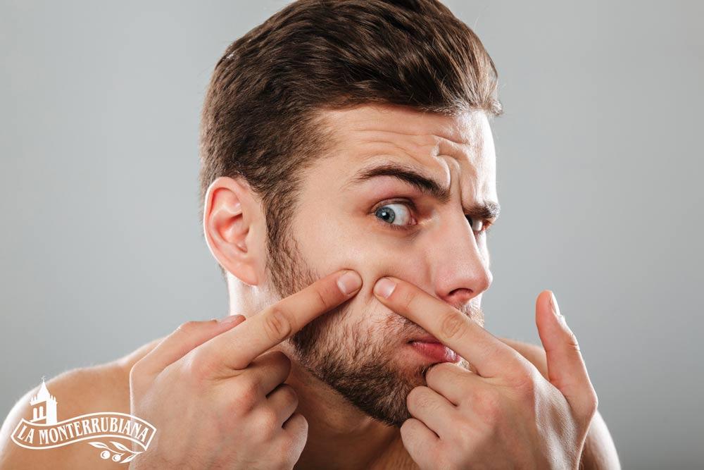 mejores remedios caseros para el acne