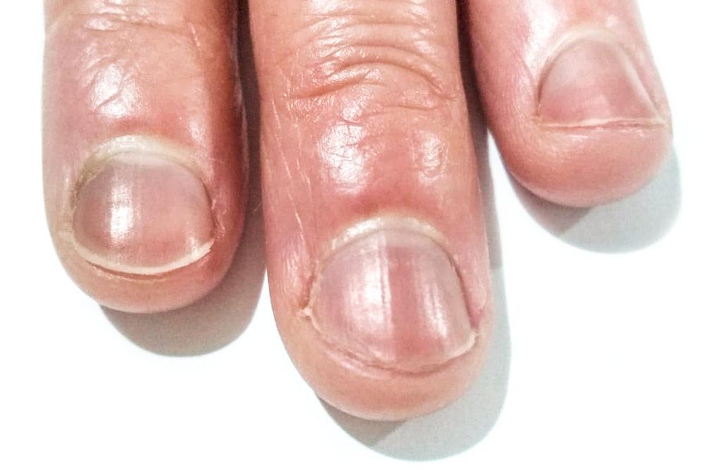linea de beau uñas