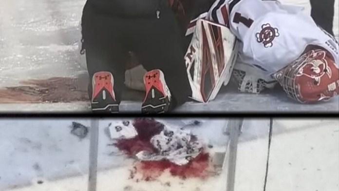 Un portero sufre un grave corte en la pierna: corrió peligro de morir desangrado