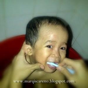 Penjagaan Gigi Kanak-kanak