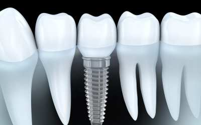 Dental Implants in Pensacola, FL
