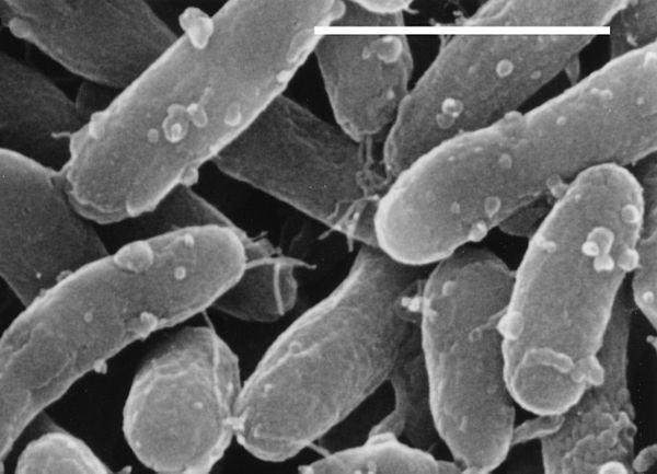 examples of archaebacteria