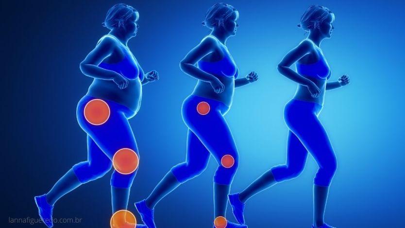 Caminhada uma forma ideal de atividade física