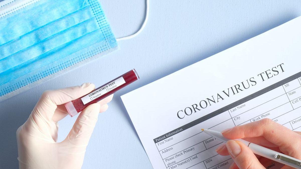 Ofrecen pruebas de coronavirus en Buncombe