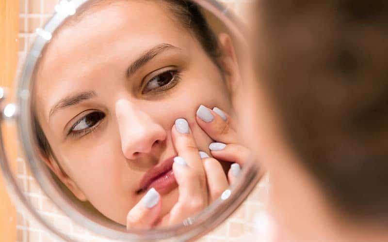 los-adolescentes-con-acne-necesitan-apoyo-emocional