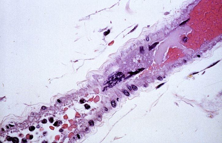 microorganismo anticuepro anticuerpos