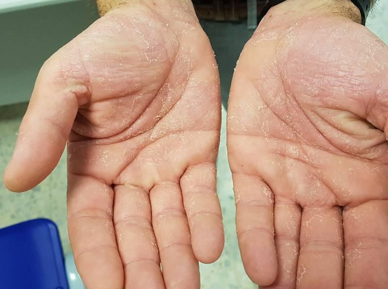 revelan-nuevo-sintoma-asociado-a-secuelas-covid-19