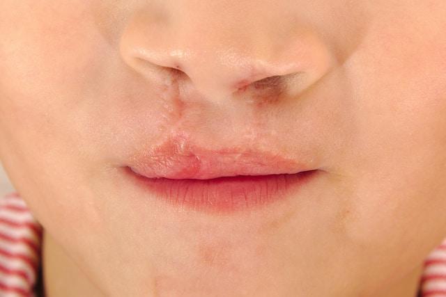 ¿Qué es el síndrome de paladar hendido?