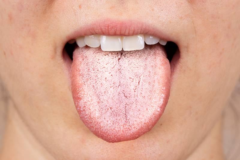 lengua-covid-el-nuevo-sintoma-del-coronavirus