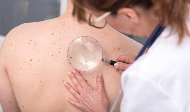 ¿Cómo detectar el cáncer de piel?