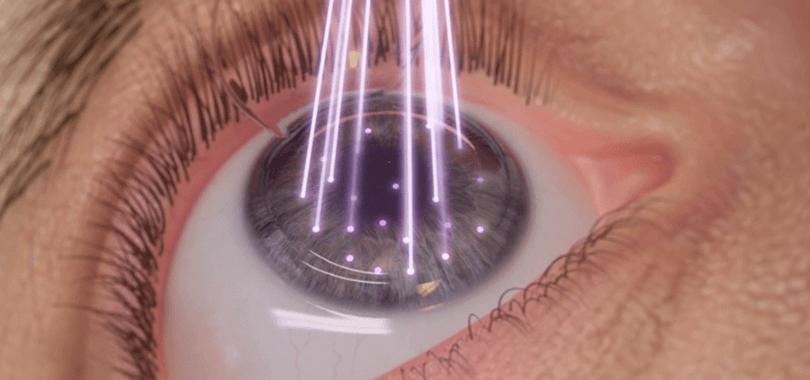 Hombre-vista-fibra-óptica