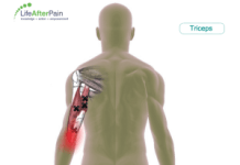 triceps-trigger-point