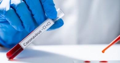 21 Positivos y 1 Fallecido en Río Grande: Parte Diario Epidemiológico Covid-19 al 10 de Septiembre del 2020