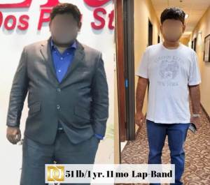 Bariatric-Surgery-Before-And-After-Lap-Band-Surgery-Results-Weight-Loss-Surgery-Center-Of-Los-Angeles-Beverly-Hills-Glendale-Rancho-Cucamonga