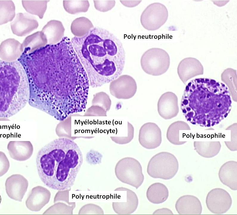 La leucémie myéloïde chronique