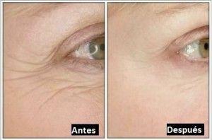 Fotos antes y despues - 10