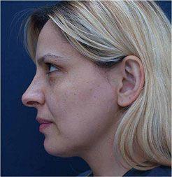 Cara tras el tratamiento con tripollar