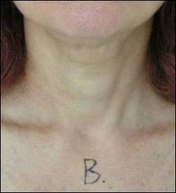 Cuello tras tripollar