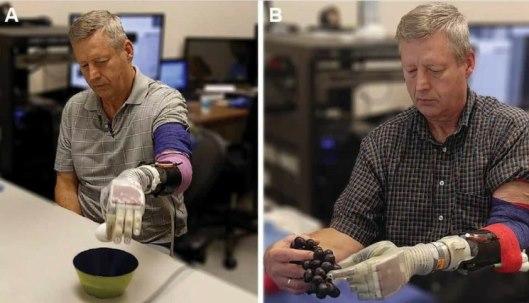 Desarrollan brazo protésico motorizado; se mueve con el pensamiento