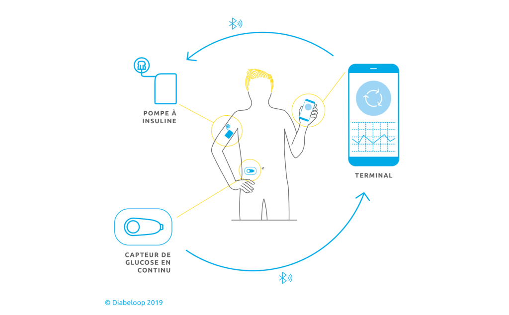 Fonctionnement du système Diabeloop : l'IA dans le domaine de la santé