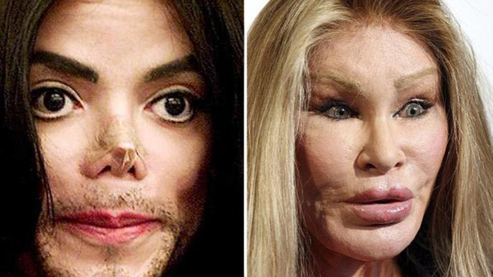 celebrities plastic surgery - plastic surgery