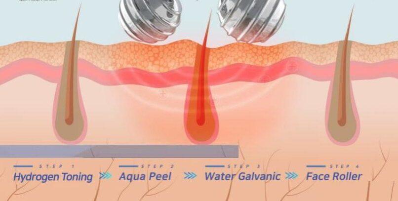 aquasure-h2-kielce-lifting-kielce-kosmetyczka-kosmetolog
