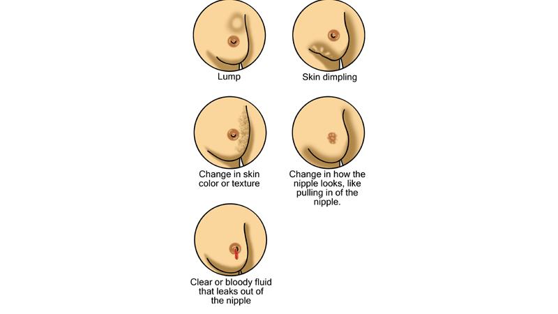 10 Síntomas del Cáncer de Mama que Usted Necesita Saber 4