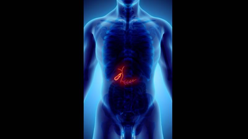 Remedios naturales para los cálculos biliares