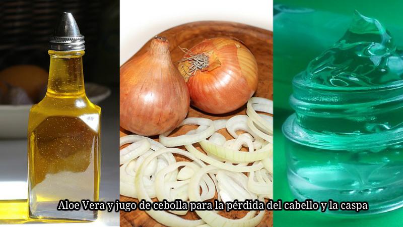 Aloe Vera y jugo de cebolla para la pérdida del cabello y la caspa