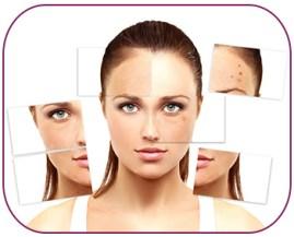 Traitement laser de l'acné