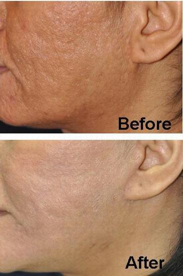 Acne scar removal thailand  Yoskarn Clinic  plastic