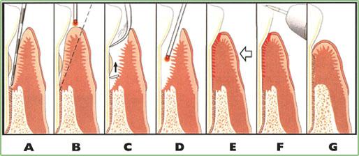 LANAP Laser Gum Surgery - Steps