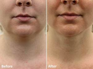 Dr Darm LipoLift Neck Before and Afters JA (1)