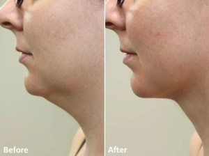 Dr Darm LipoLift Neck Before and Afters JA (3)