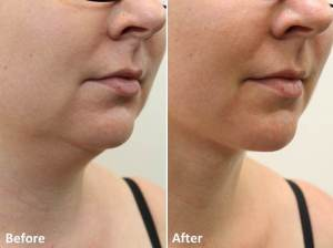 Dr Darm LipoLift Neck Before and Afters JA (4)