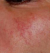 Traitement laser de la couperose