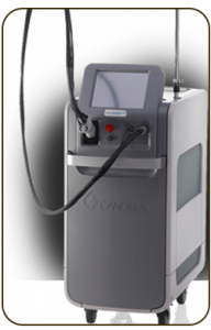 laser-epilation-candela