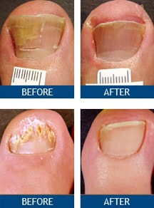 Toenail Smells Like Cheese : toenail, smells, cheese, Fungus, Archives, Toenail, Treatment, Center