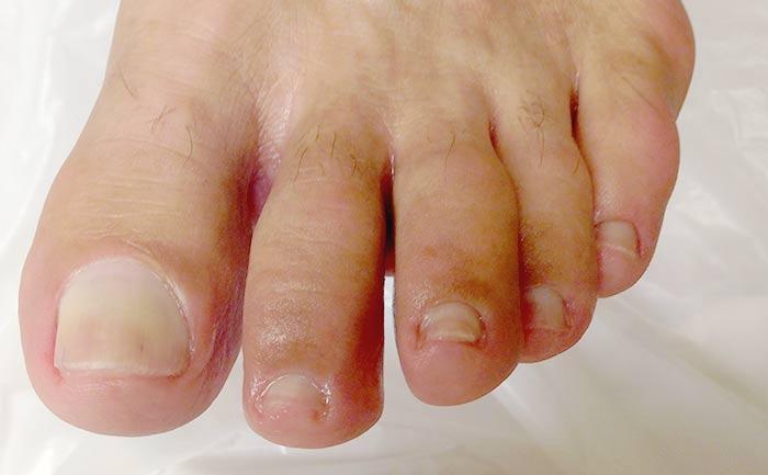 Κατεστραμμένα Νύχια