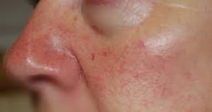 treating-broken-blood-vessels