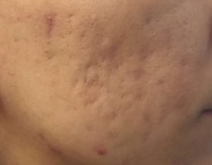 tixel acne scarring before 490x380