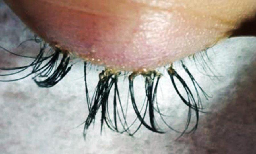 Eyelash Extensions Gone Wrong - Eyelash Blog & Beauty Tips