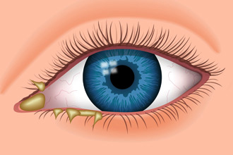 eye discharge booger - Eyelash Blog & Beauty Tips