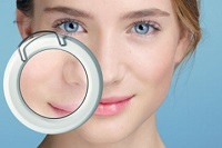 What procedures help narrow the pores on the face?
