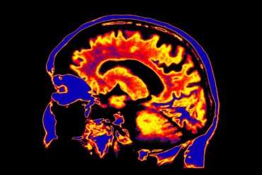 La Sociedad Psicodélica se reúne en Madrid para una jornada sobre psicodélicos, neurociencia y salud.